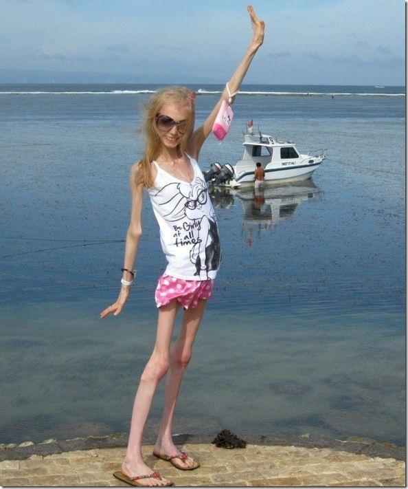 Résultat d'images pour femme anorexique